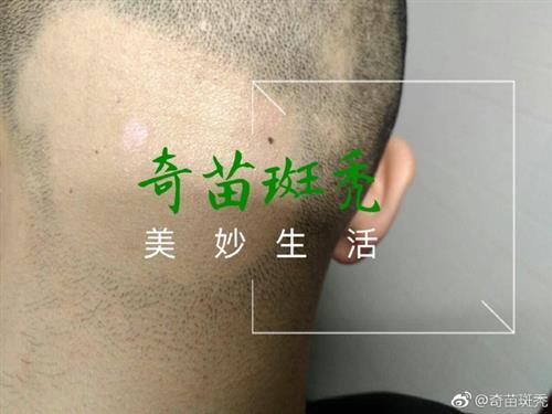 斑秃|奇苗增发(图)|斑秃的偏方